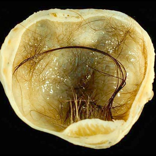 Dermoid cyst of the ovary - All information about cysts