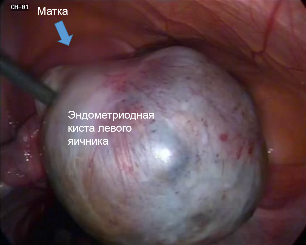 Endometrial cyst of the ovary - All information about cysts
