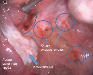 endometrial-cyst-5