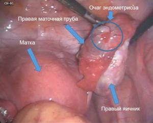 endometrial-cyst-6