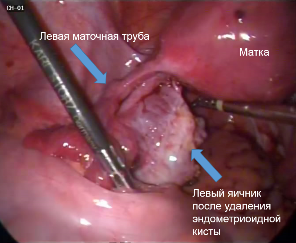 endometrial-cyst-7