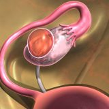 Causes of ovarian cysts - three most significant factors every woman should knowaCauses of ovarian cysts.
