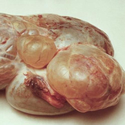 serous-cystadenoma