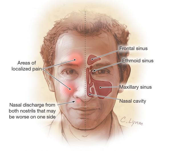human sinus structure