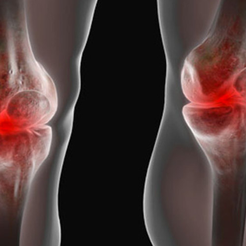 Baker's-cyst-behind-the-knee