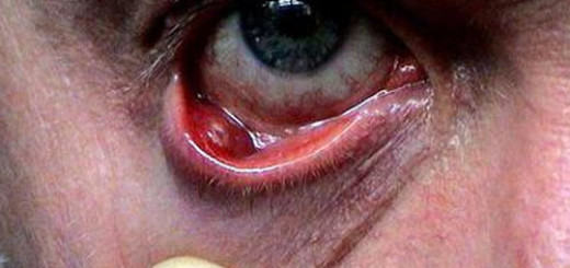 Chalazion-upper-eyelid
