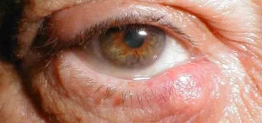 Chalazion eyelid (meibomian) cyst - everything to know