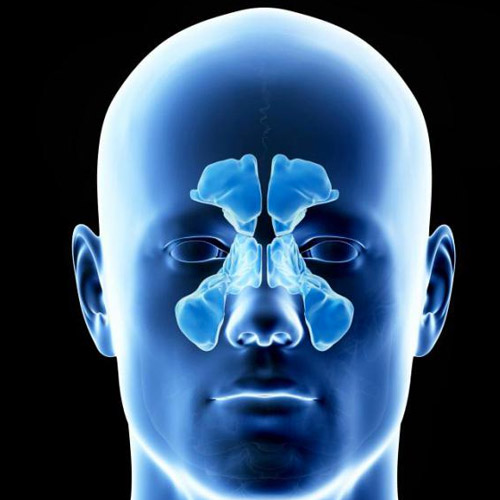 Cyst-of-the-maxillary-sinus