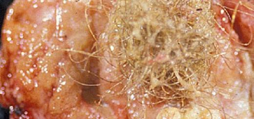 Dermoid-cyst