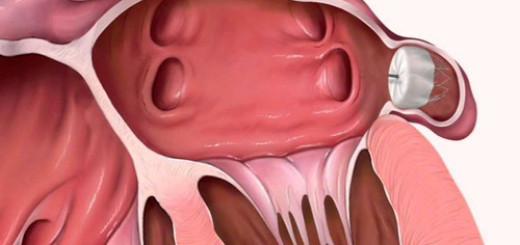 Kidney-Cyst--general-description,-classification
