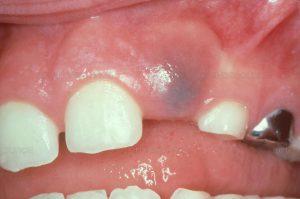 eruption dental cyst - dental cyst types