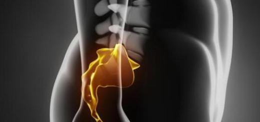 Tailbone-cyst