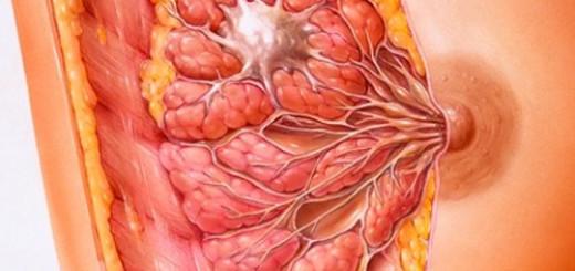 breast-cyst-2