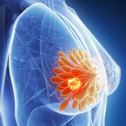 breast cysts: causes, symptoms, diagnosis and treatment. how to, Sphenoid