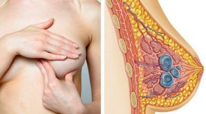 What symptoms do patients with breast cysts have?