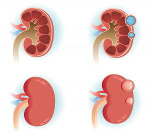 acquired kidney cyst treatment and symptoms
