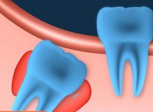 follicular dental cyst - dental cyst types