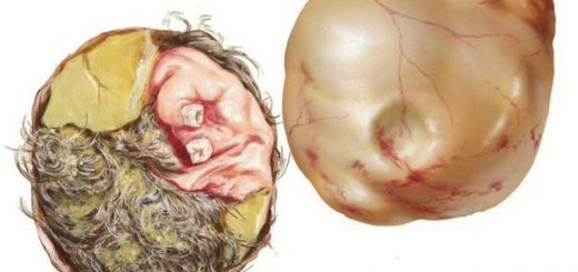 Dermoid cyst - everything to know. What's its main danger?