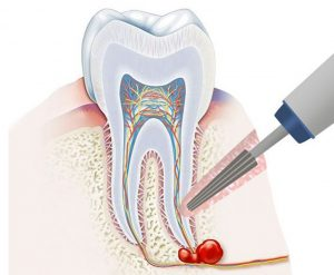 apicectomy (cystectomy) as a way of dental cyst treatment