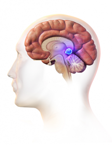 What is pineal cyst in brain - is it a danger?