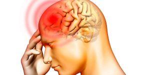 retrocerebellar cyst symptoms and treatment