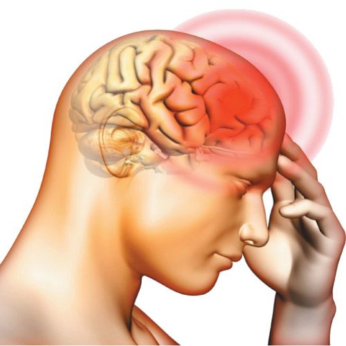 Arachnoid cysts: diagnosis, complications