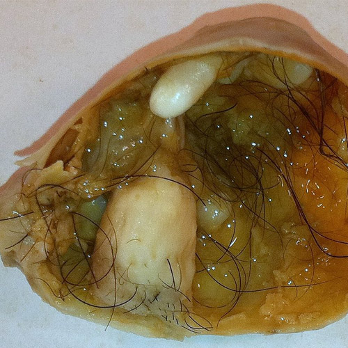 Dermoid-ovarian-cysts