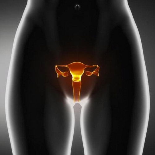 What is the corpus luteum cyst?