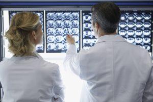 retrocerebellar cyst diagnosis and treatment