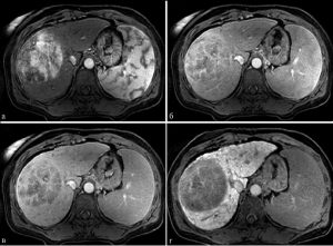 tomography of the liver