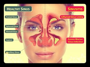 structure picture helps to see the difference and learn whether sinus cyst be cancerous