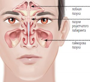 the structure of maxillary sinuses to understand the ways of maxillary sinus cyst natural treatment