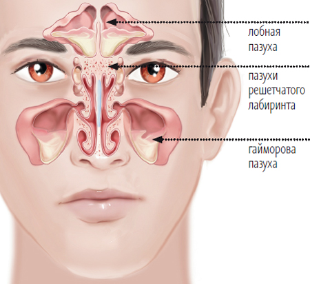 Ways of maxillary sinus cyst natural treatment - All