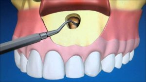 what is apicoectomy