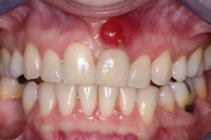 tooth cyst can be treated with apicoectomy