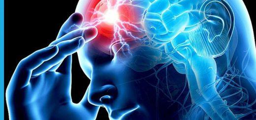 retrocerebellar arachnoid cyst - brain cysts