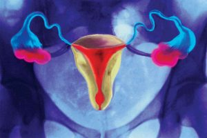 functional ovarian cyst complications