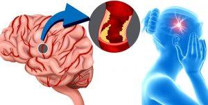 retrocerebellar arachnoid cyst causes and reasons