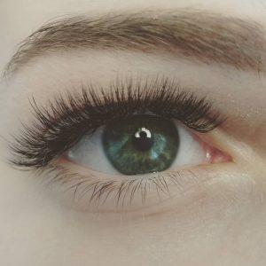 eye cyst removal