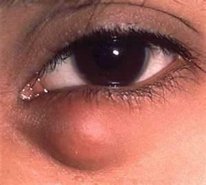 oncocitoma eye cyst