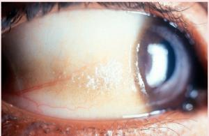 Keratoma eye cyst