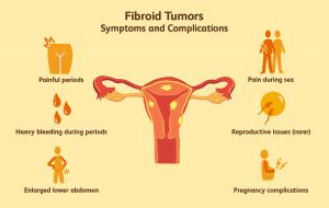uterus fibroids symptoms