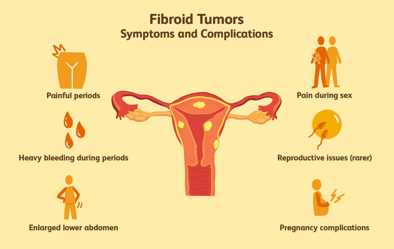 Uterine Fibroid Pain - Pelvic Rehabilitation Medicine |Uterine Fibroids