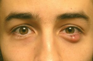 Liposarcoma eye cyst symptoms look like