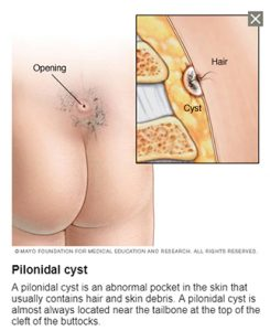 Structure of a pilonidal cyst - Pilonidal cyst recovery time - things to know after surgery